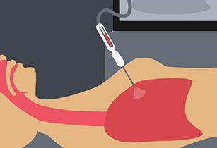 Pleural Mesothelioma Diagnosis- CT Guided Biopsy